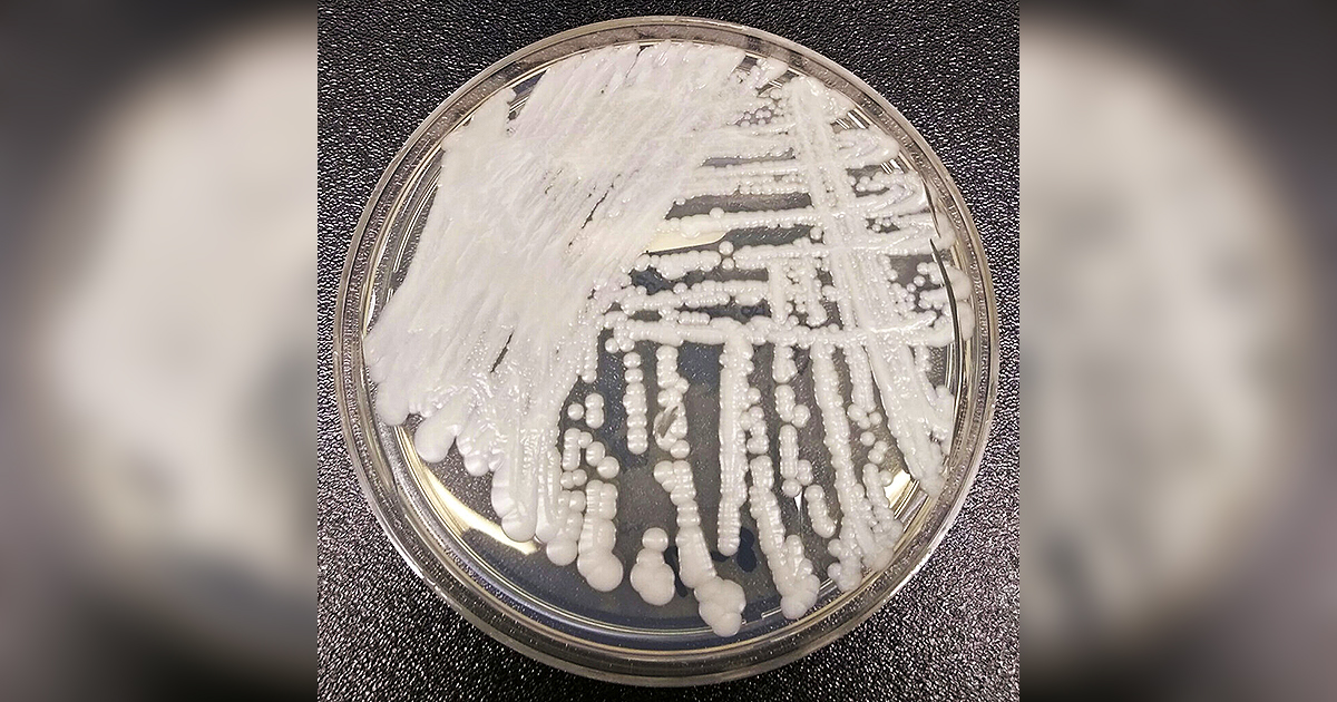 This photo made available by the Centers for Disease Control and Prevention shows a strain of Candida auris cultured in a petri dish at a CDC laboratory. On Thursday, July 22, 2021, the CDC said they now have evidence of the untreatable fungus spreading in a Washington, D.C, nursing home and at two Dallas-area hospitals. (Shawn Lockhart/CDC via AP)